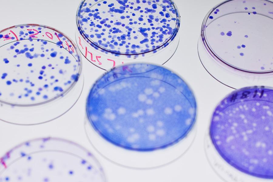 Cells in petri dish